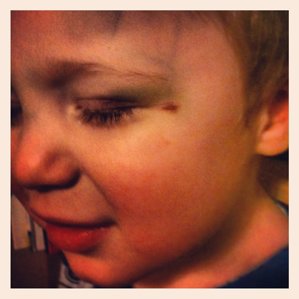 Brigham got in a fight with his sippy cup and it obviously won. That's one heck of a 3 day old shiner!
